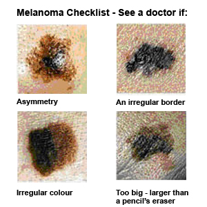 we recommend self checking and getting to know your own moles so you can spot changes immediately