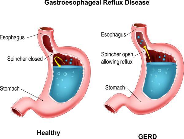 Acid reflux disease aka GERD