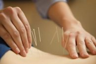 Acupuncture Therapy is usually painless