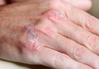 Psoriasis treatment without prescriptions