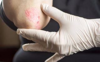 Reducing Psoriasis Flare-ups